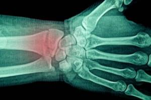 Separate Injuries Allow Separate Workers' Compensation Benefits